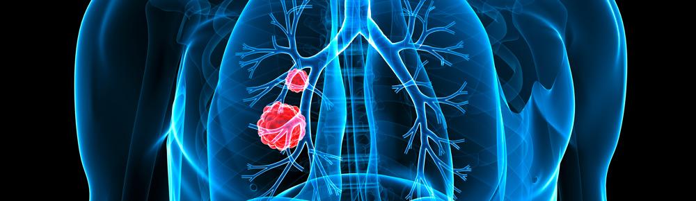 Abbildung Lungenkrebs Mann